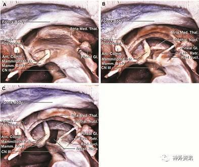 露逼做爱囹�a_图8. a.去除下丘脑室管膜暴露乳头丘脑束;b.