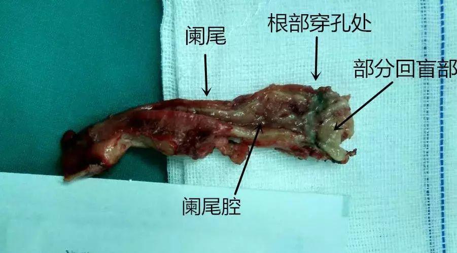 肠壁解剖结构图