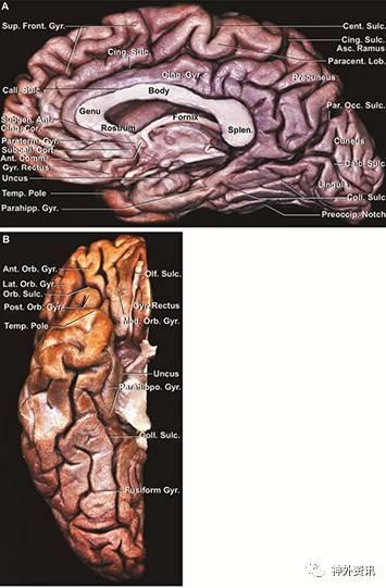 最后,对大脑中心结构从内到外进行解剖.