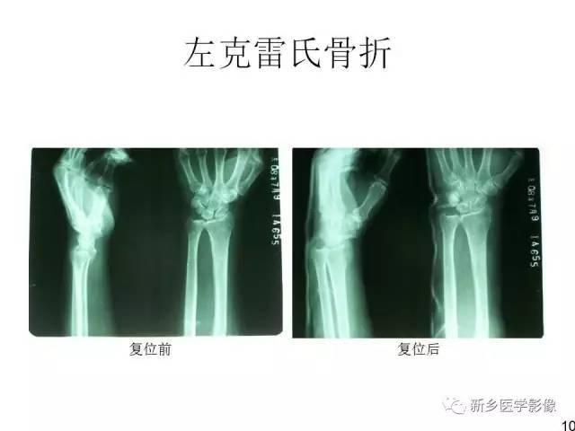 全身常见骨折X线汇总!