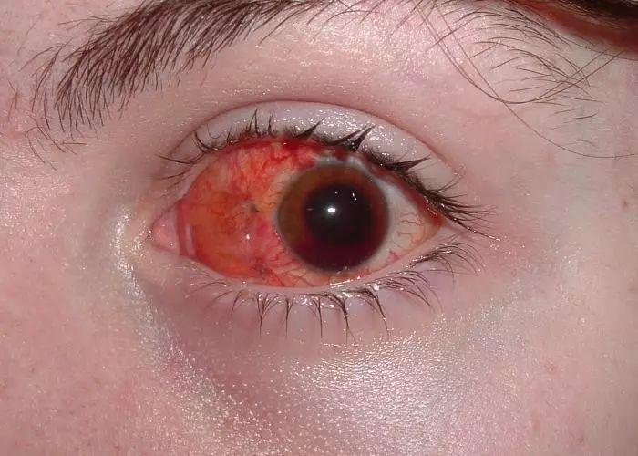 眼睛充血但是不痛不痒_在8米开外被一群孩子射中眼睛,遭遇了视觉模糊和眼睛充血