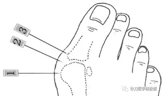 针刀疗法的原理_蓄元健康超微针刀疗法