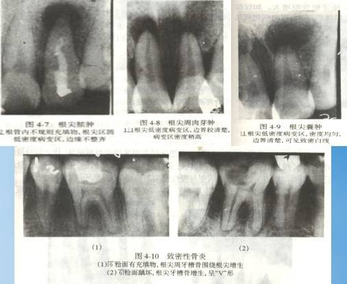 大胆性��f�x�_(4)致密性骨炎:x显示根尖局限的骨质致密阻射影像.