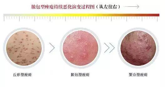 脓包型痤疮如何治疗_其它 正文  脓包型痤疮主要是由丘疹型痤疮演变而来,丘疹属于一般性