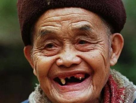 八十高龄老年人的牙齿修复方法 老年人牙齿掉了怎么办?