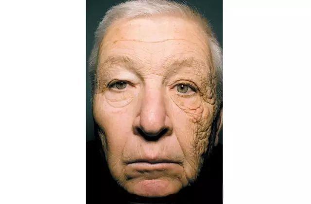 減少光老化對于皮膚的傷害