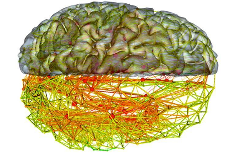 人工神经网络和生物神经网络的比较 IT资讯 第3张