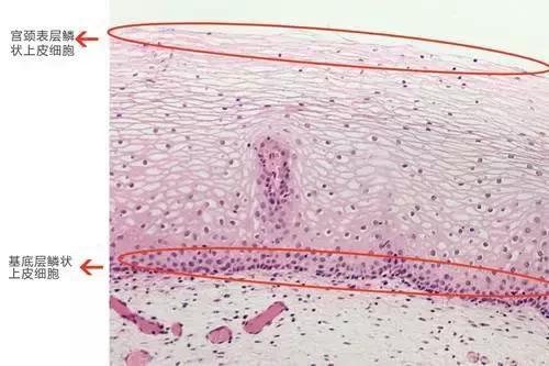 HPV检测结果不一样 这些原因你绝对想不到