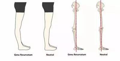 髖,膝,踝三個關節應基本在一條直線上,此時足部著力點應位于腳掌中間圖片