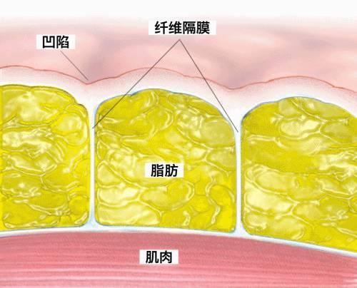 男性的真皮下结缔组织层是连续的,而女性是不连续的.