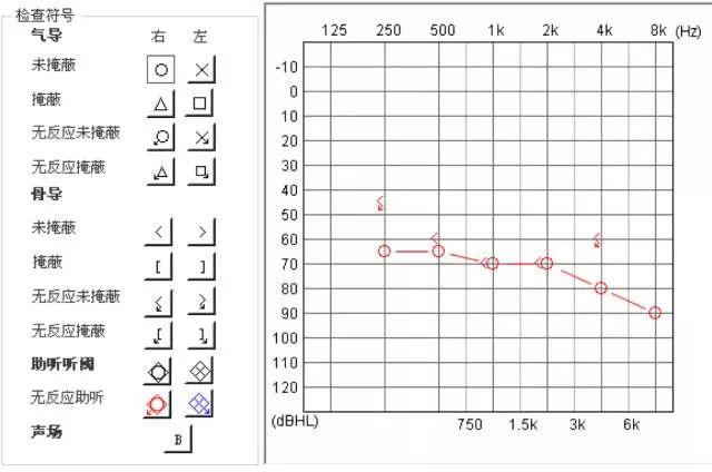 芜湖吉和路助听器:您的听力损失需要选配助听