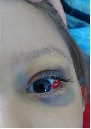 眼球出血_体格检查:眶周瘀斑,结膜下出血(图1),眼球突出,颈部僵硬.余未见异常.