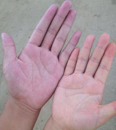 ②手掌颜色发红带紫色,说明血液黏稠已经相当严重.图片