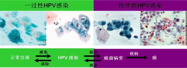 慢性宫颈炎hpv感染_从HPV感染到宫颈癌要经历哪些过程?