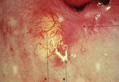 天乃舞衣子阴道_阴道镜下所见纳氏囊肿,可见a线和b线之间存在一黄色的囊肿,表面有扩张
