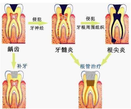 大熊猫因牙髓炎瘦成皮包骨,你对口腔疾病了解吗?