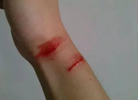 梦见被猫抓伤手出血