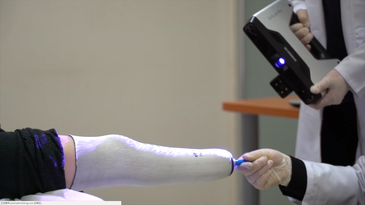 3D技术帮助叙利亚残疾儿童重新站立,难民就医不再坎坷图1