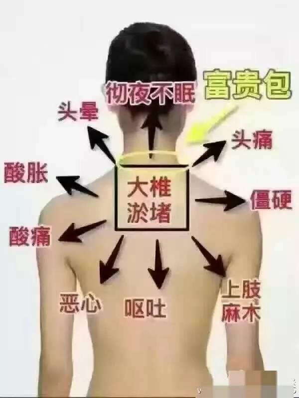 大椎的准确位置图图片