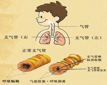 道炎的原因有哪些_小儿性支气管炎发病原因?道家小儿推拿杨晓分享道医支