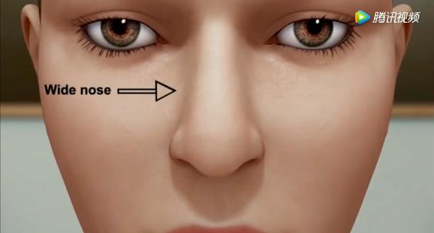 驼峰鼻矫正在手术过程中是怎么进行矫正的,魏亨坤为您展示