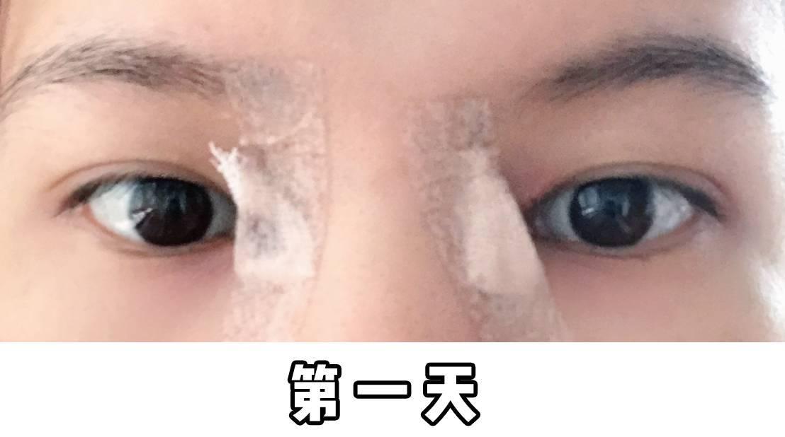 开眼角结疤了怎么办