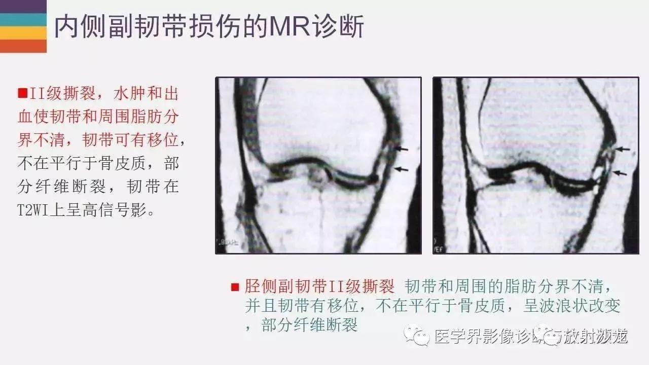 图解膝盖半月板的位置图片_膝关节侧副韧带损伤图片_六图吧www.6tuba.com