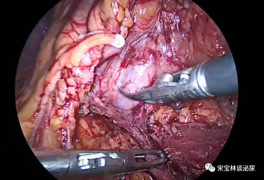 双镜(腹腔镜,肾盂镜)联合一期治疗upjo合并肾结石