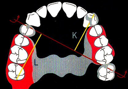 口腔可摘局部义齿支架设计大全,最好收藏!图片