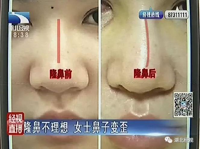 掉得大!武汉欣悦医院隆了一次鼻子,结果鼻子变歪了