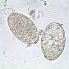 人体寄生虫虫卵图片_传说中的四大吸虫,你能分得清吗?