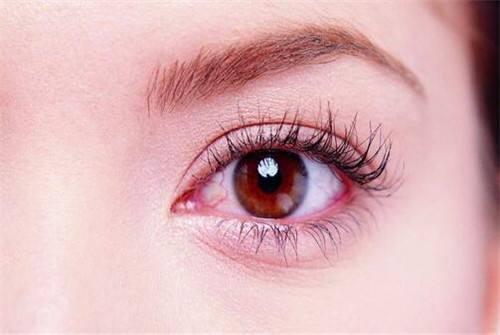 眼球血丝_眼睛有红血丝是怎么回事?