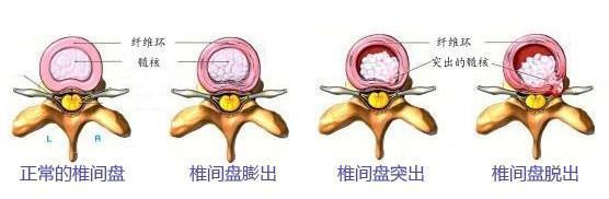 关于腰椎间盘突出症,你知道这些吗?