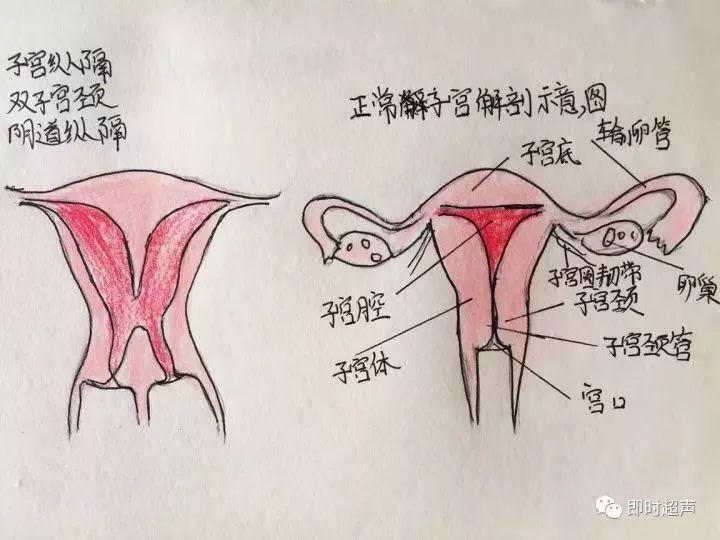 子宫肌瘤 另外分享子宫肌瘤学习的手绘, 子宫肌瘤作为一种最常见的良