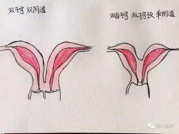 女人阴泡艺囹�a�f�_妇产科超声手绘图,一定可以加深你的印象!