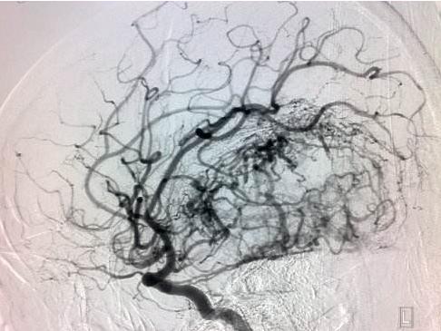 几种脑血管造影方法(DSA,CTA,MRA)的比较