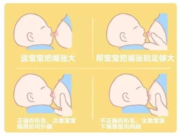 吸乳头插逼逼图_乳头内陷哺乳有困难?矫正有方不慌张