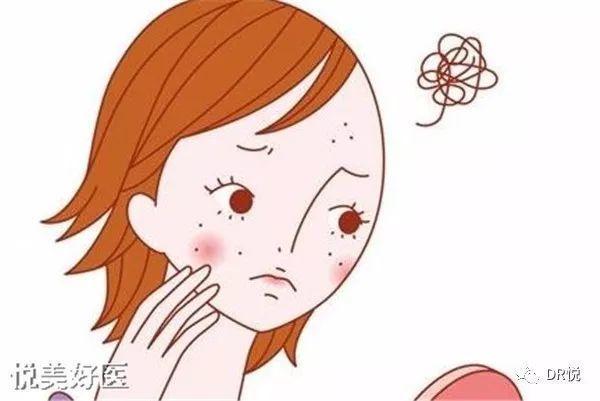 痘痘、闭口粉刺很难祛?光敷面膜可不行呀