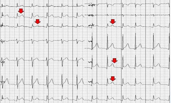 心肌梗塞搭桥的原理_3、讨论   溶栓、经皮冠状动脉介入治疗(pci)、冠状动脉搭桥术等方法广泛用于临床急性心肌梗死的治疗,对于恢复心肌的灌注、缩小心