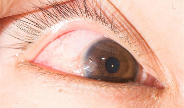 总感觉眼睛里有异物_睡醒后眼睛肿肿的,是因为睡前水喝多了?还可能是这8个原因 ...