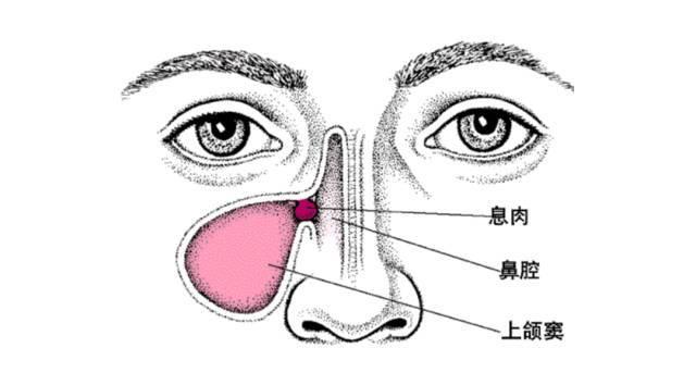 鼻子堵的原理_茜施妃雅小知识 鼻子毛孔堵塞怎么办 鼻子毛孔堵塞原因处理方法