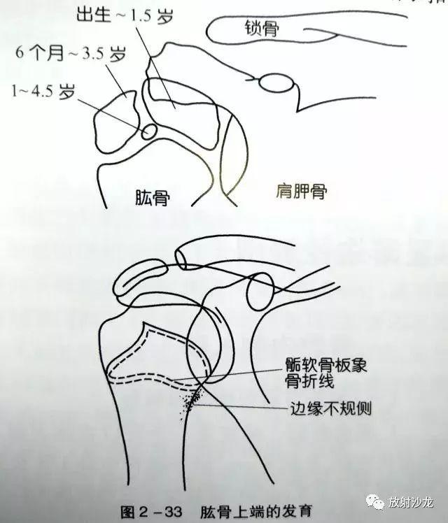 �^4獼���x�o_体育 正文  肱骨近端有3个骨骺骨化中心,即肱骨头,大结节及小结节骨化