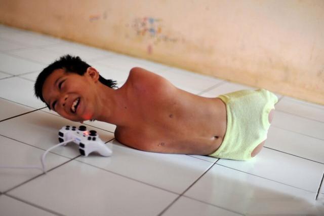 """镜头下:一位患有罕见""""先天无手无脚病""""男孩的真实生活"""