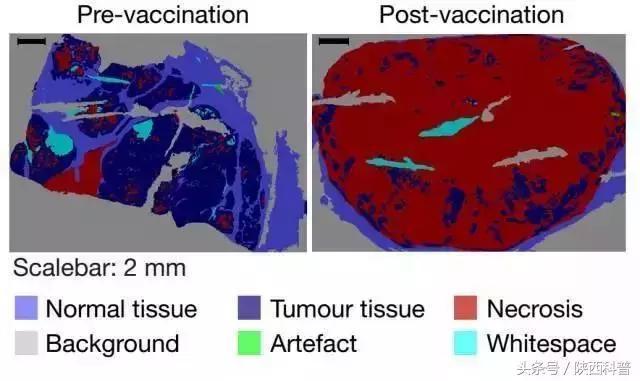 美德宣布癌症疫苗大获成功,癌细胞已扩散也可痊愈!