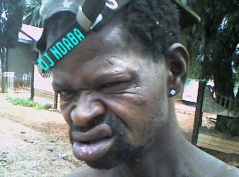 世界上最丑的男人,亚洲最少,非洲夺冠