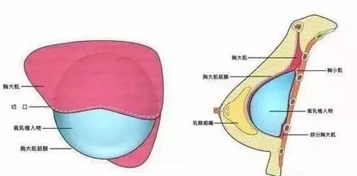 假体假体隆胸4个月胸大肌还是英文