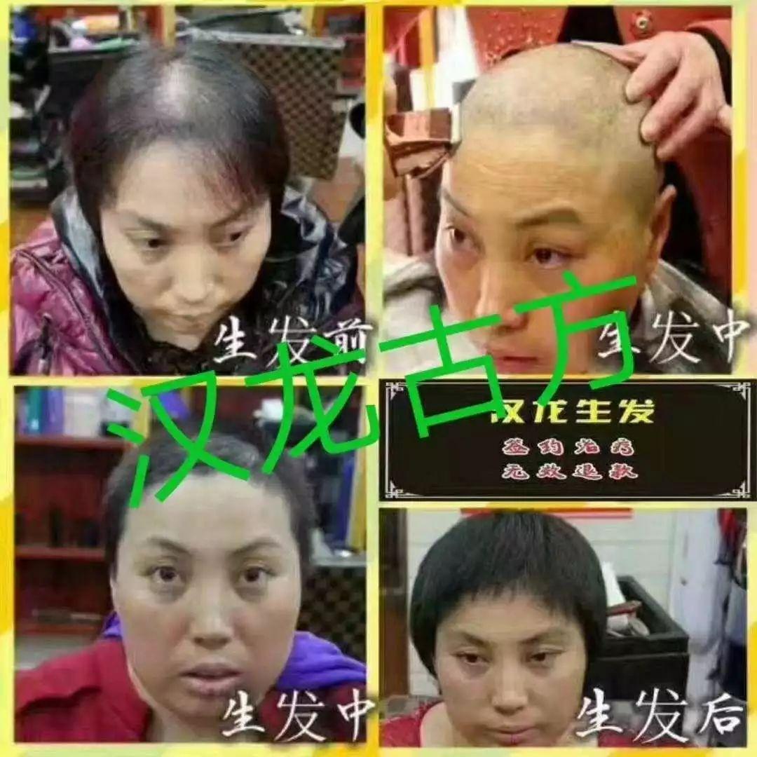 宝坻这家店厉害了,专业解决脱发,生发和头皮问题!