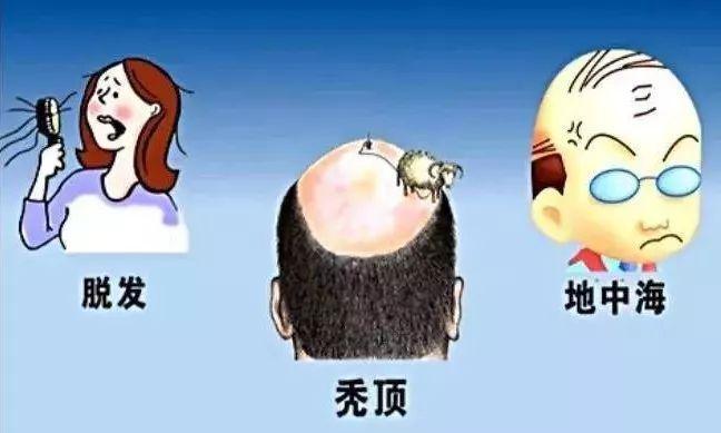 地中海植发可以保持多久