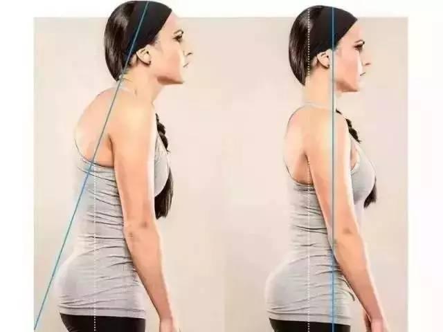 圆肩厚背_女人圆肩驼背太毁气质,该怎么矫正?