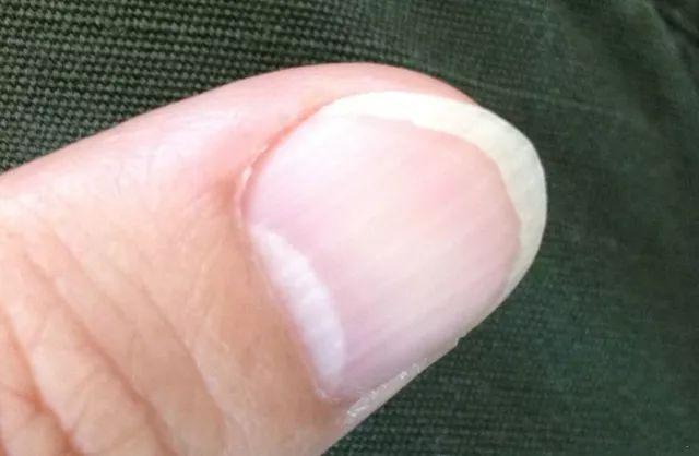 指甲有竖条纹是身体不好 月牙越多越健康 揭秘关于指甲的 4 个真相